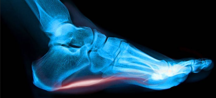 Plantar Fasciitis. Can Rudds Make A Difference?